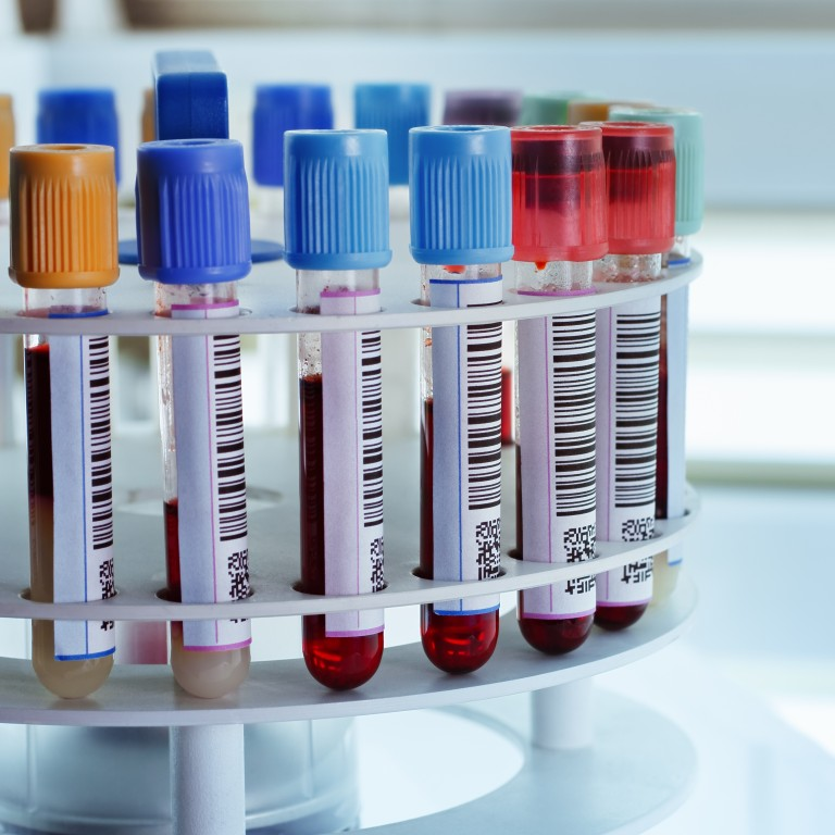 A rack of blood samples in vials